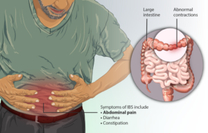 New Research Reveal Mechanism That Causes Irritable Bowel Syndrome